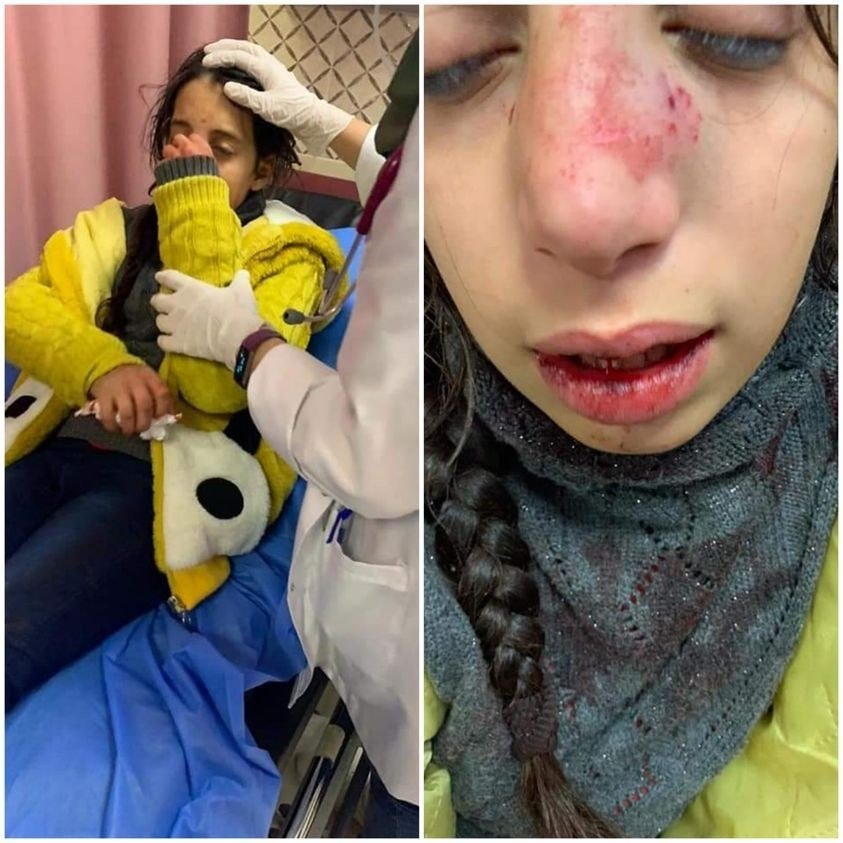 Hala Qat, an 11-year-old girl from Madama, after being attacked by Israeli settlers (Social media)