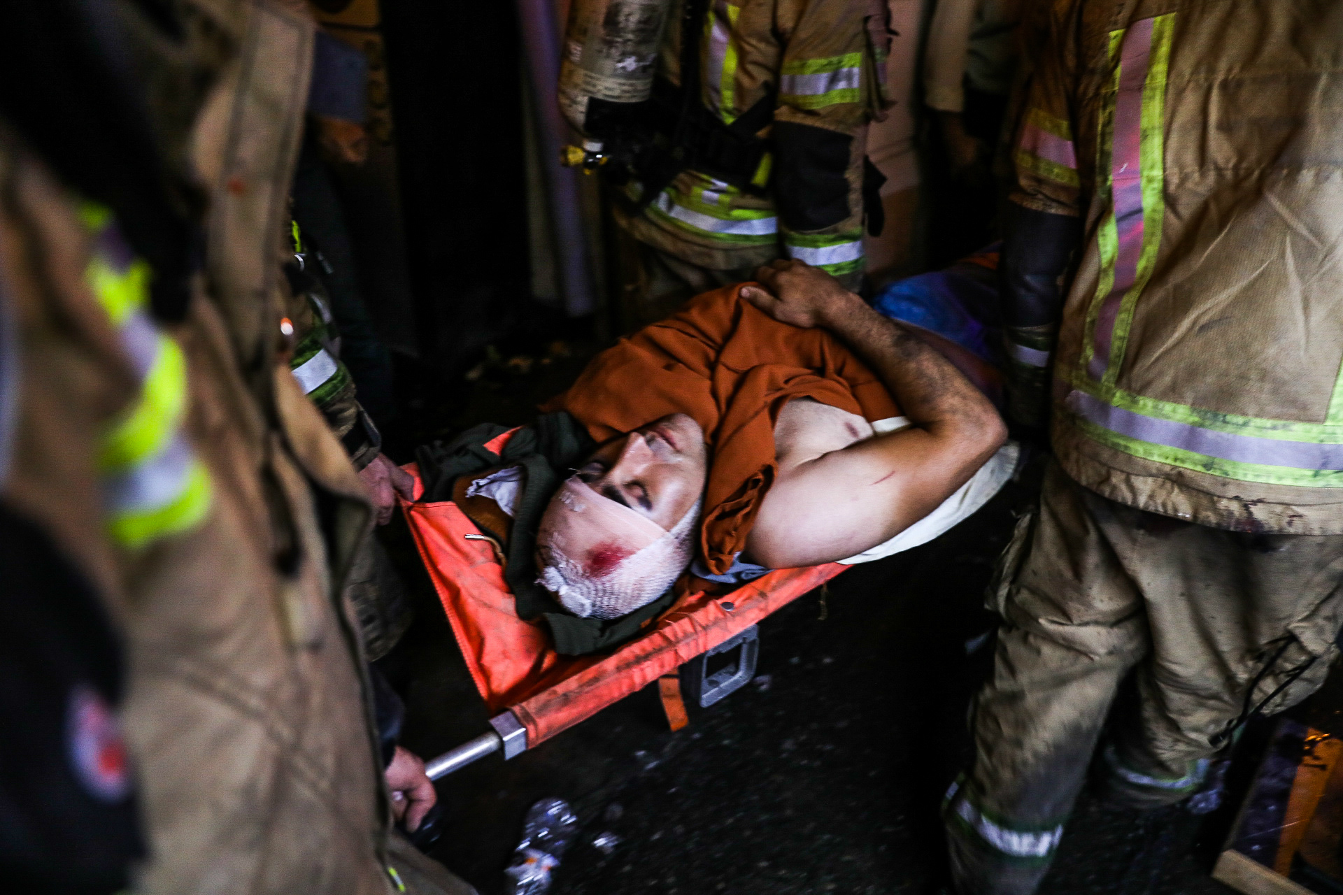First responders carry away an injured person on a stretcher at the scene of an explosion (AFP)